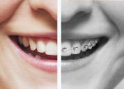 Braces in dubai - take an appointment now