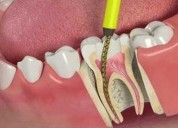 Professional root canals service