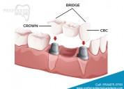 Dental crowns & bridges service-preferred dental
