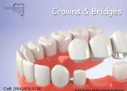 Affordable dental crowns & bridges services